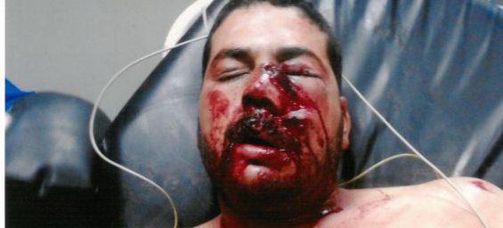 un soldat alg 233 rien blesse gri 232 vement un marocain mezouar convoque l ambassadeur d alger