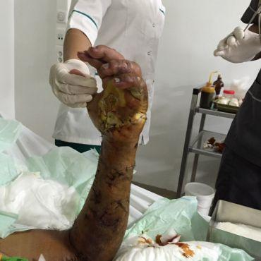 Casablanca : Un chirurgien réussit l'autogreffe d'une main amputée