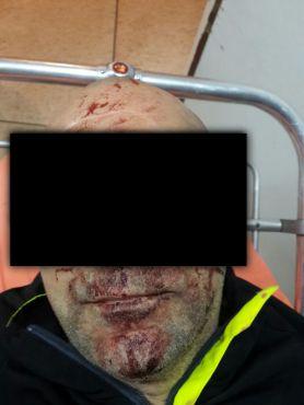 A. L. aurait été agressé le 1er mars dernier à Rabat par un employé américain de l'Ambassade US. / Ph. DR