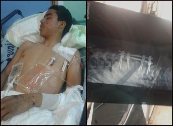 Abdelmoula Zaiqer souffre de multiples traumatismes. / Ph. Najat Mahjoubi