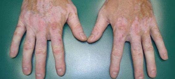 Comme on peut nous blanchissons vite la peau de mains